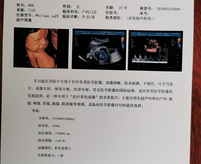 医用干式超声胶片